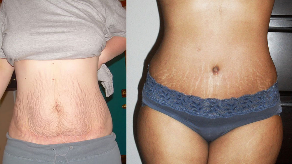 Stretch marks after giving birth